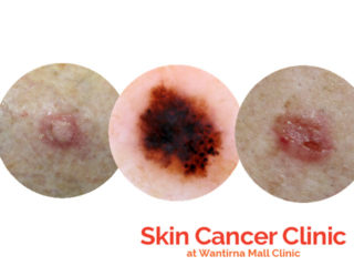 Skin Cancer Clinic Wantirna Mall Clinic